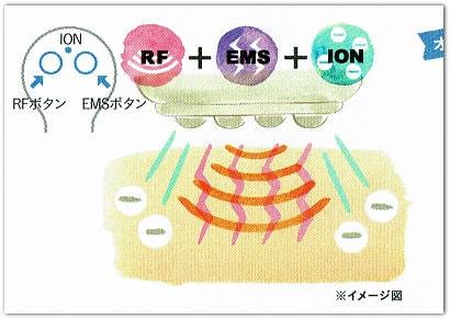 RF+EMS+イオン導入イメージ図