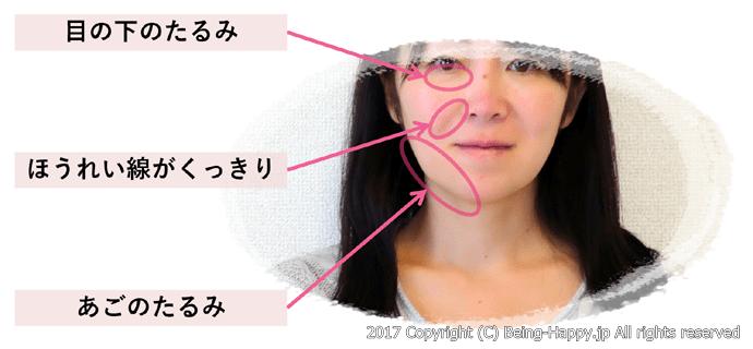 顔たるみの気になる部位の写真(正面)