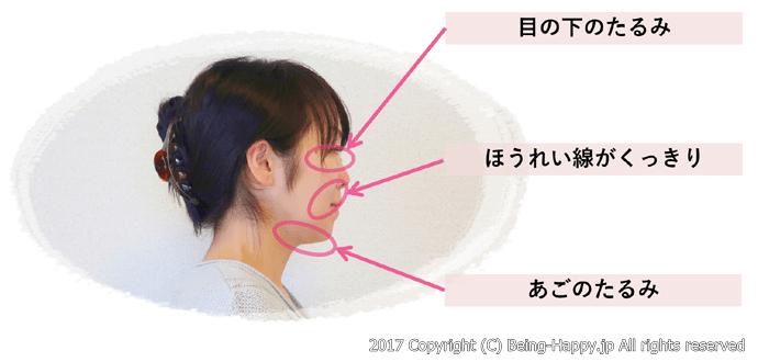 顔たるみの気になる部位の写真(横から)